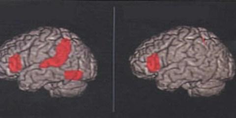 dyslexia_brain_big