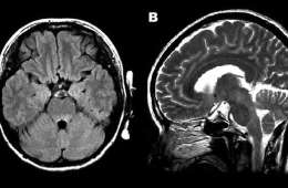 This MRI shows encephalitis caused by enterovirus.
