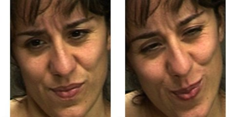 This shows two images of a woman with real and faked pain expressions.