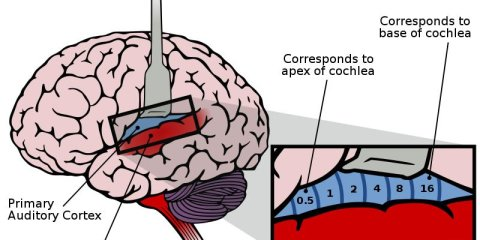 The image shows the location of the auditory cortex in the brain.