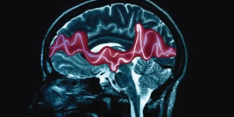 This image shows a brain scan with a pink line representing electrical activity.