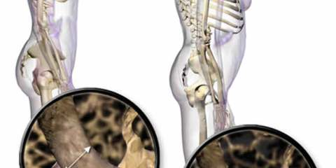 The image shows the differences between normal bones and those of people with osteoporosis.