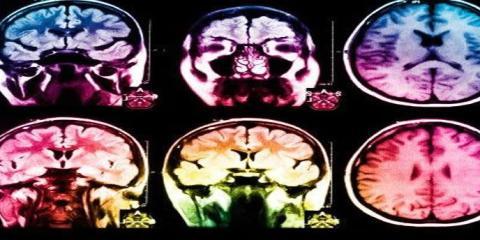This image shows mri brain scans.