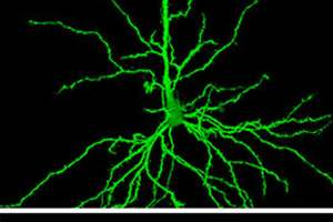 The image shows hippocampal neurons in a rat being treated with riluzole.