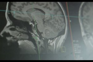 The image shows an MRI scan taken from the study.