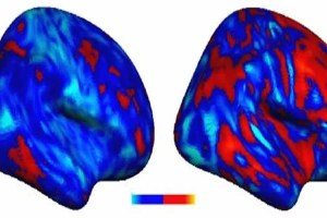 This image shows two brain scans which compare the extent of the voxel deviation in people with autism.