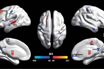 Image shows the brain scan differences between the autistic and non autistic brains.
