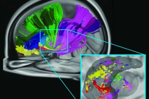 This image shows the brain scans associated with the research. The caption best describes the image.