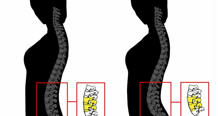 Image shows the spine curvature.