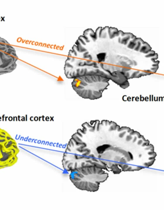 Sensorimotor Regions of the Brain Become Overconnected in ...