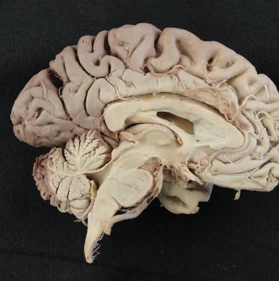 Youthful Vigor Restored to Adult Brains   Neuroscience News