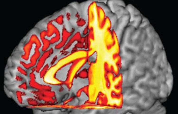 Alzheimer's - Magazine cover