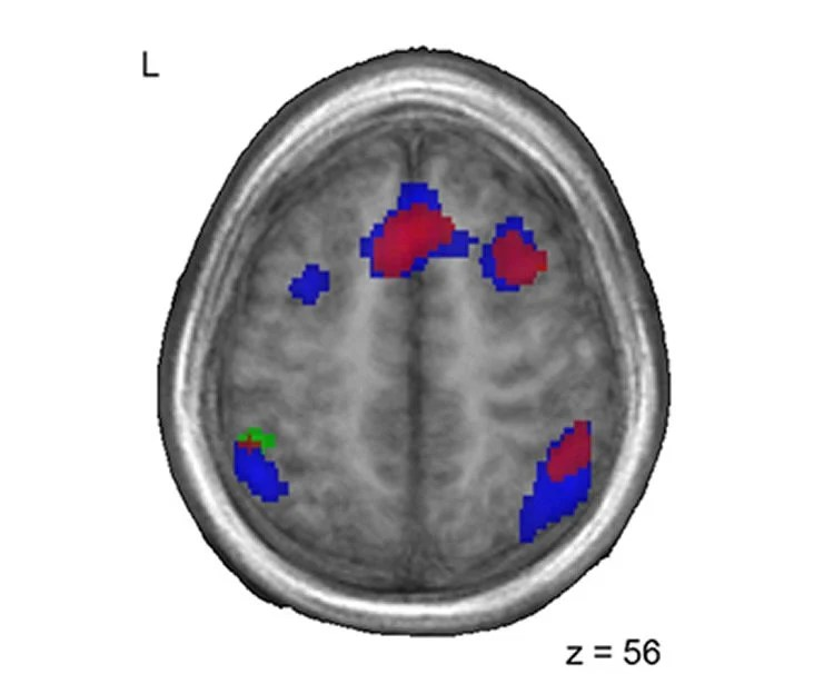 First Language Wires the Brain for Later Language Learning