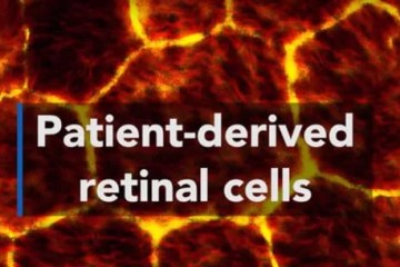 Image shows human retinal cells.