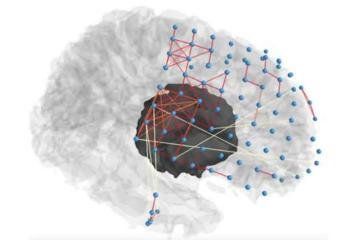 Image shows brain with a network overlayed.