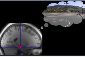 Image shows an MRI scan with the hippocampus highlighted and a basketball court.