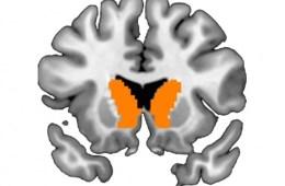 Image shows a brain slice of the caudate nucleus.