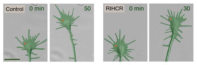Diagram of neurons.