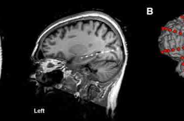 Image shows an MRI scan of the human brain.