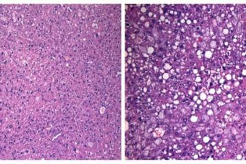 Image shows stained mouse liver slices.
