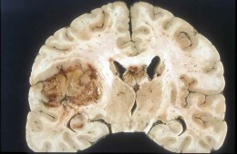 Image shows a brain slice with a glioblastoma brain tumor.