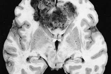 Image shows a glioblastoma tumor in a brain slice.