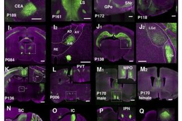 Image shows mouse brain slices.