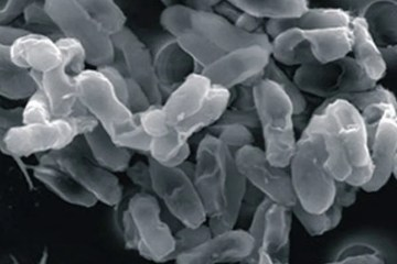 Image shows bacteria.