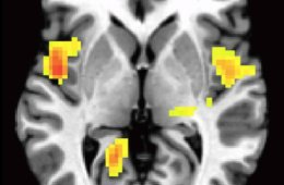 Image shows the left and right insula highlighed in a brain scan.