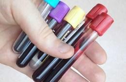 Image shows blood samples.