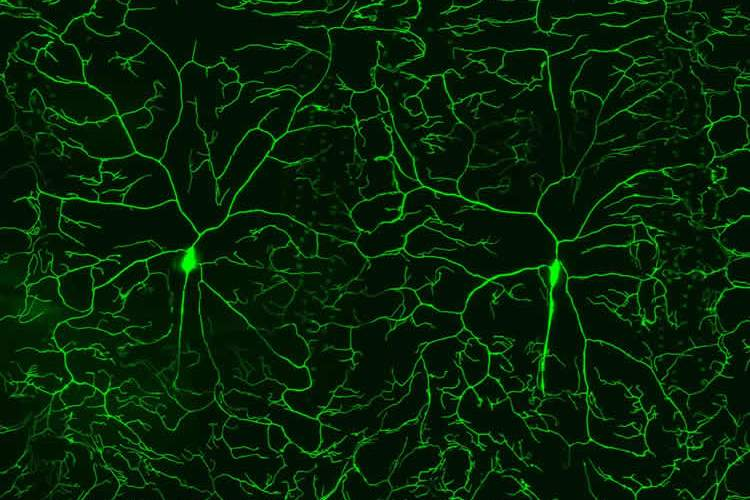 Image shows neurons.