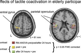 Image shows brain scans from the research paper.