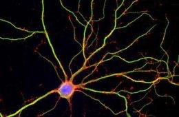 Image shows a hippocampal neuron.