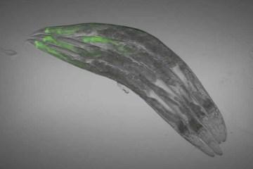 Image shows a C. elegans.