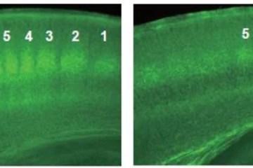 Image shows thalamocortical neurons.
