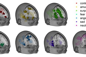 Image shows MRI scans.