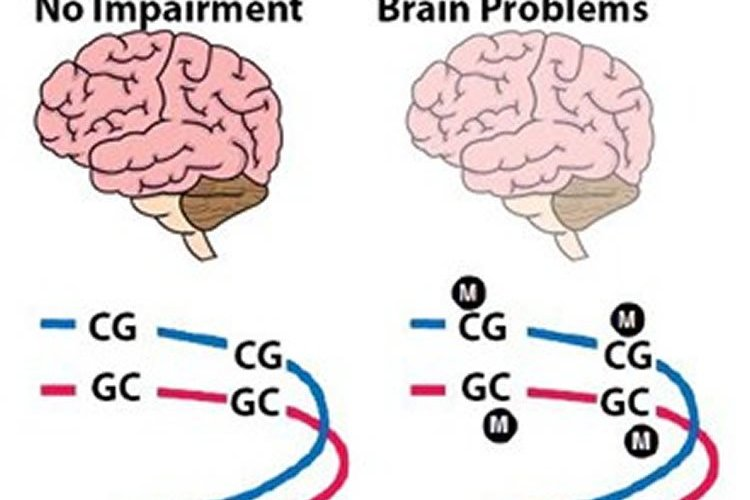 Image shows 2 brains.