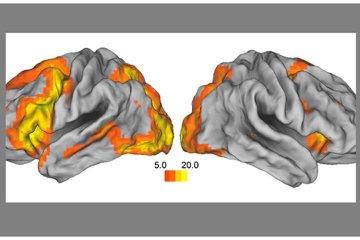 Image shows MRI brain scans.
