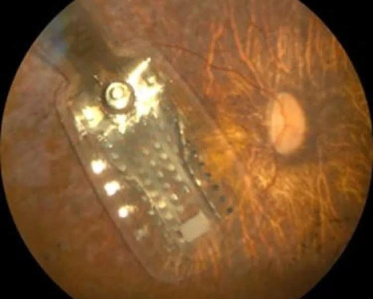 Image shows the Argus II Retinal 98 Prosthesis.