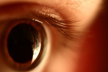 Image shows an eye.