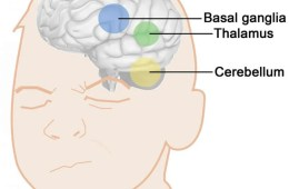Image shows brain areas associated with tourette tics.