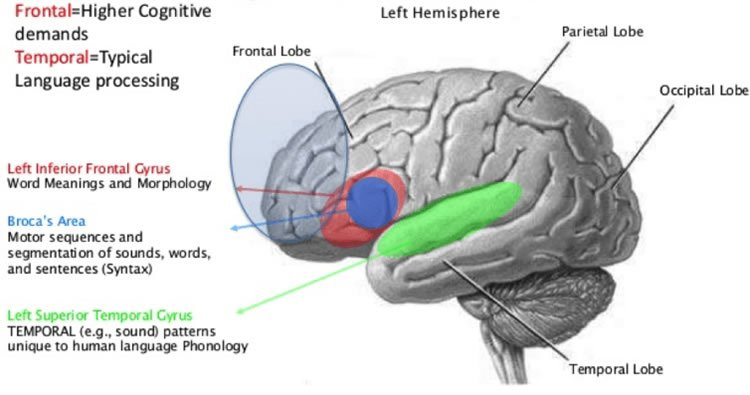 Image shows language areas in the brain.