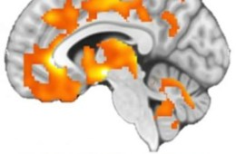Image shows endorphin release in a brain scan.