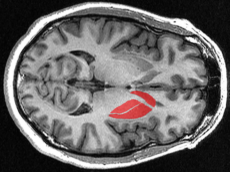 striatum brain