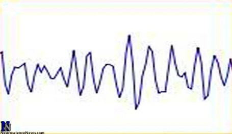 EEG trace is shown in this image.
