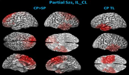 Nine images of brain scans are shown with different brain areas highlighted.