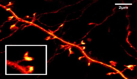 An image of a mouse neuron is shown.