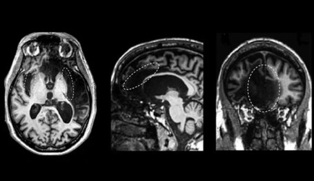 Three brain scans of Patient R are shown and described in the caption.
