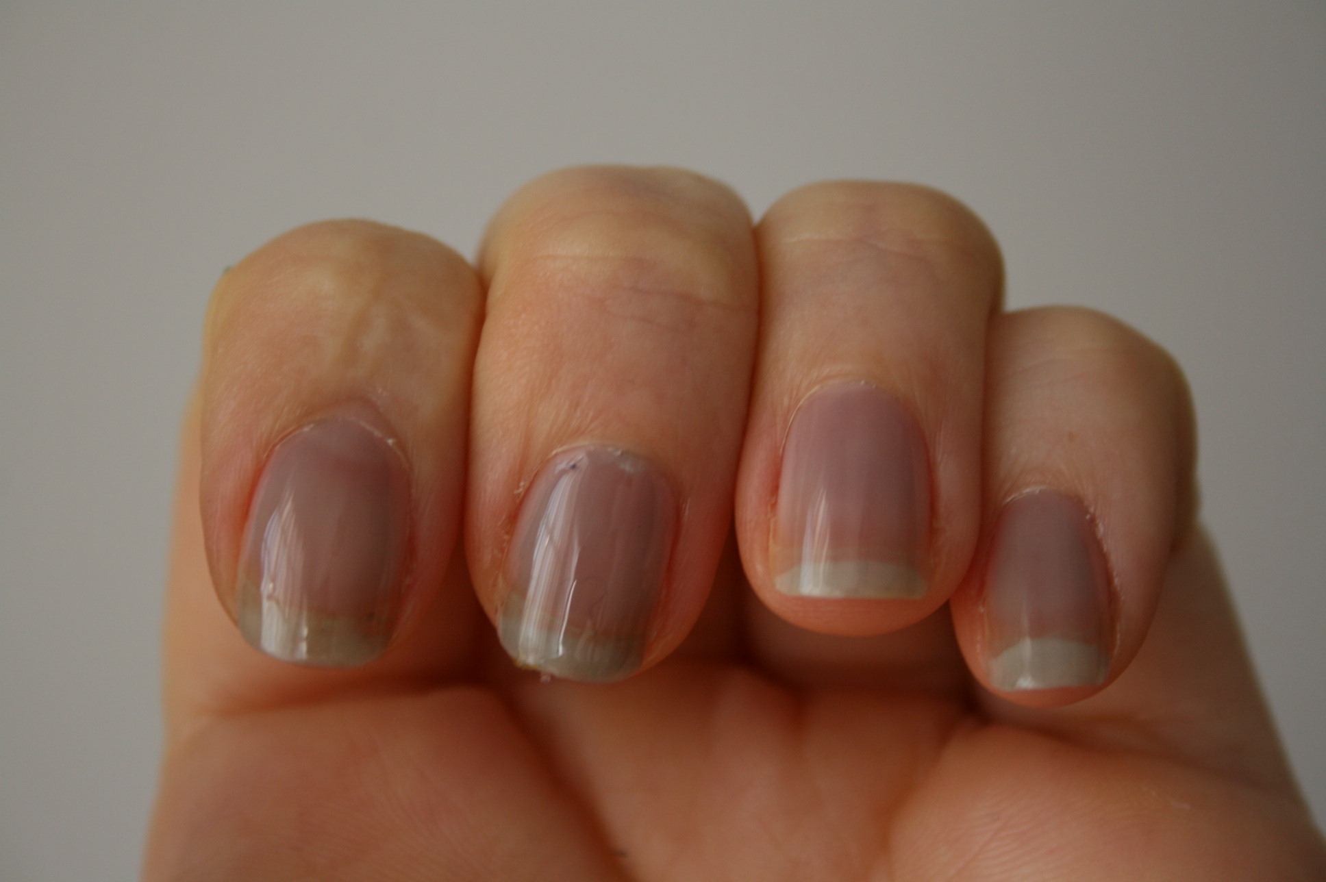 Check Your Nails For These 8 Signs Of Health Issues