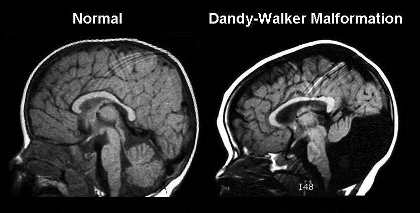 Prevalence You Dandy-walker Syndrome: Symptoms, Causes & Treatments | New